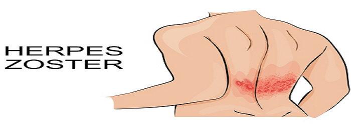 okoz-e súlycsökkenést a herpeszvírus?)