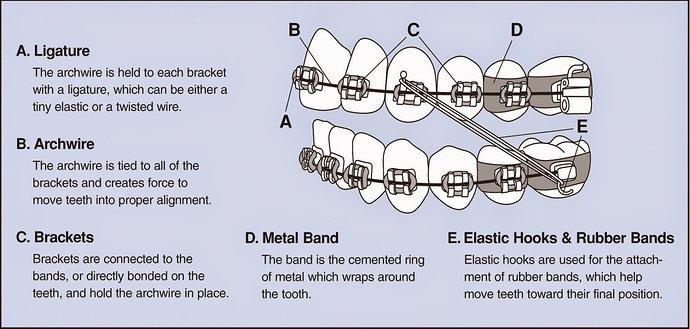 Alat ortodonti cekat