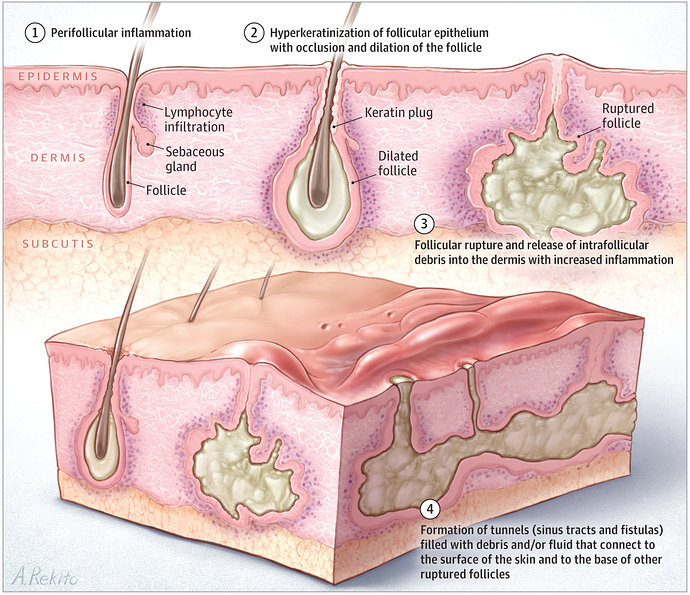 Patogenesis Hidradenitis supuratif