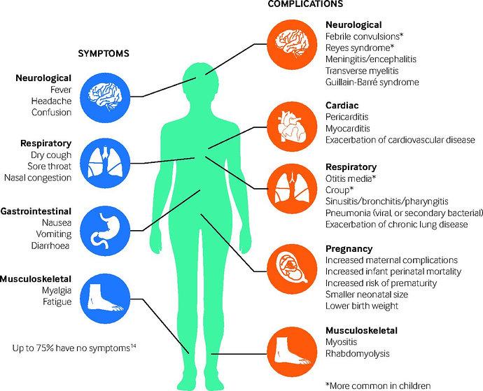 Gejala dan Komplikasi Influenza