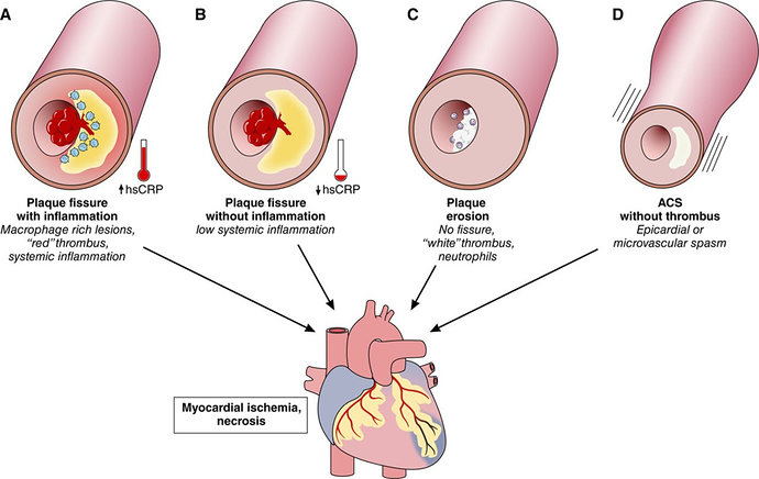 Mekanisme Penyebab Sindrom Koroner Akut