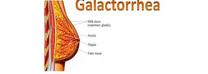 galaktoreal