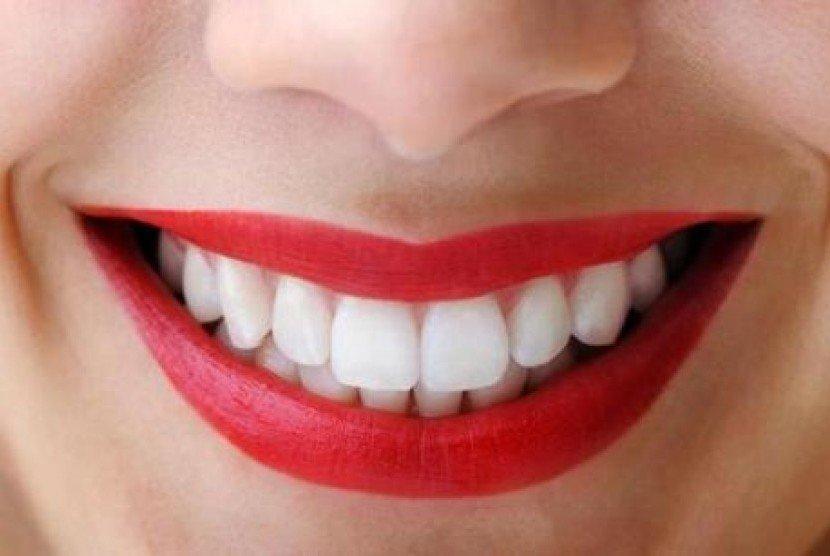 Bagaimana Cara Menghilangkan Bintik Hitam Pada Gigi Diskusi
