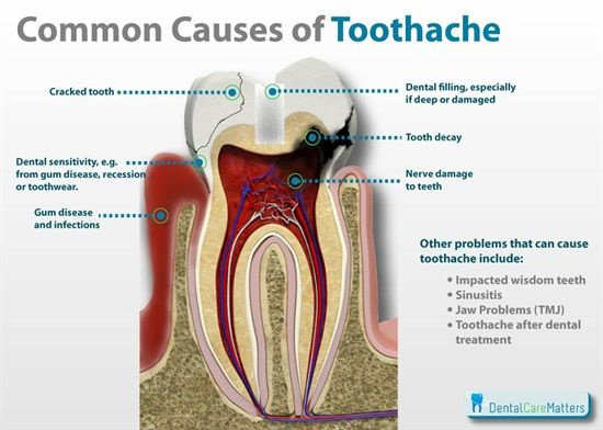 Penyebab umum sakit gigi