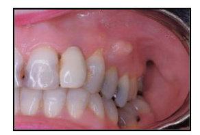 Abses gingiva