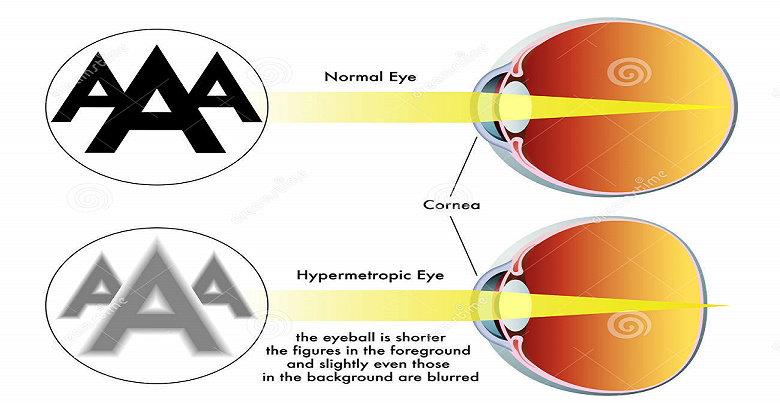 Hipermetropia (rabun dekat)