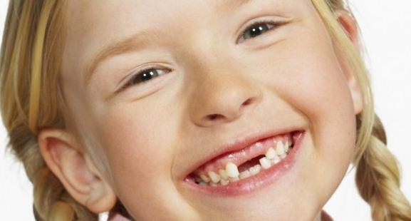 Tambal gigi