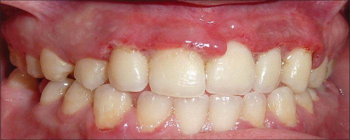 Gingivo-periodontitis ulseratif nekrosis
