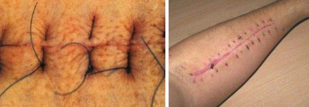 Kiri : Penutupan Luka secara Primer, kanan : penyembuhan luka secara primer