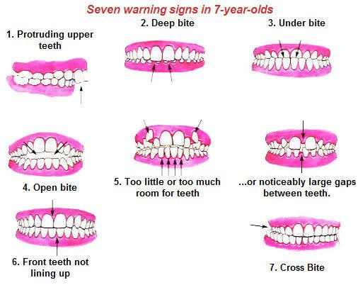 Tanda-tanda permasalahan gigi pada anak umur 7 tahun