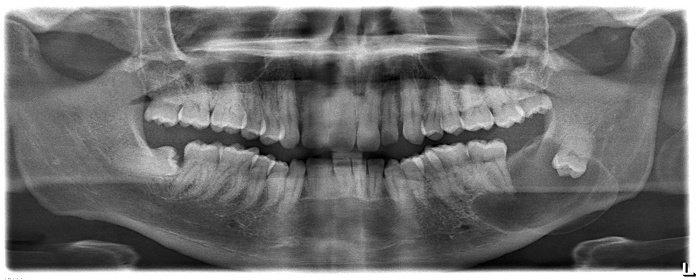 Apa Yang Dimaksud Dengan Kista Dentigerous Ilmu Kedokteran Gigi Dictio Community