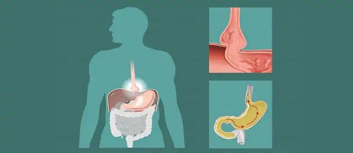 Penyakit Refluks Asam atau Refluks Gastroesofageal