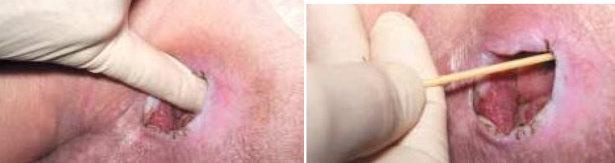 Mengukur kedalaman luka, kiri : dengan jari, kanan : dengan aplikator