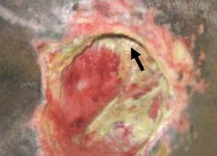Tepi luka undermining (menggaung), membentuk kavitas di bawah kulit
