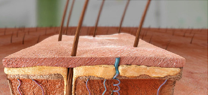 Hidradenitis Supuratif