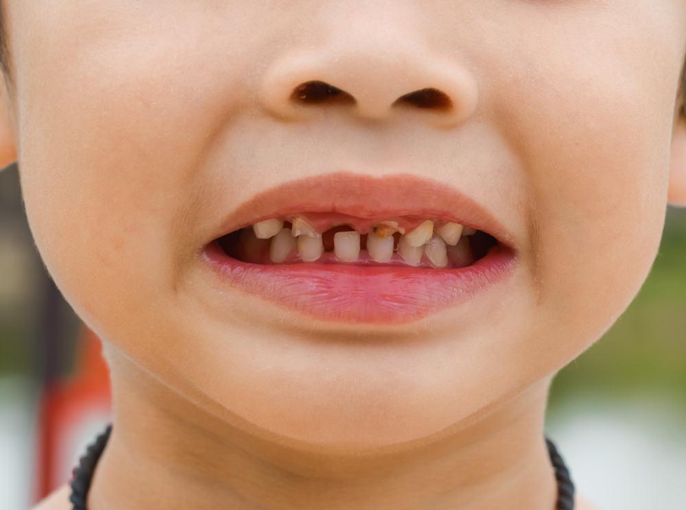 Apakah Kerusakan Gigi Bisa Menurun Kepada Anak Diskusi Kesehatan