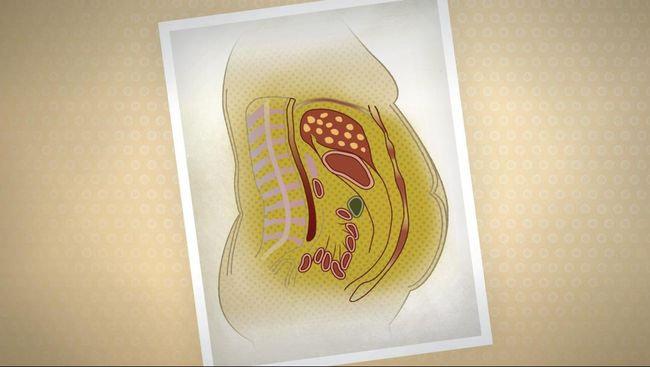 Apa yang Anda ketahui tentang indeks lemak tubuh ?