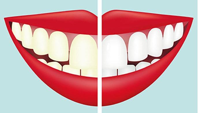 memutihkan atau bleaching gigi