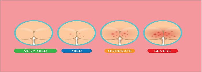 Dermatitis popok