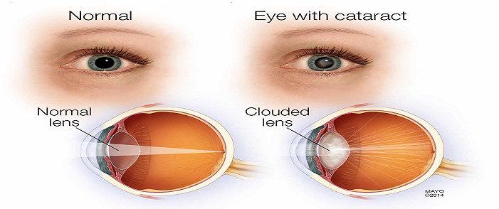 Perbedaan mata normal dan mata katarak.
