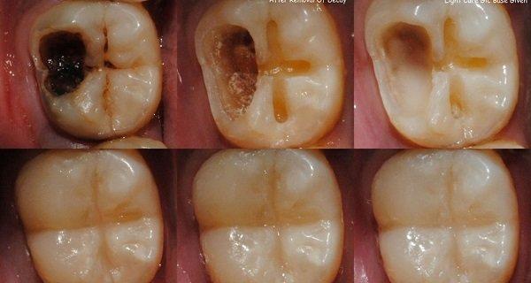 Apakah Ada Cara Yang Bisa Menyembuhkan Gigi Berlubang Dengan Obat
