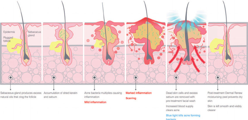 Patologi Akne vulgaris