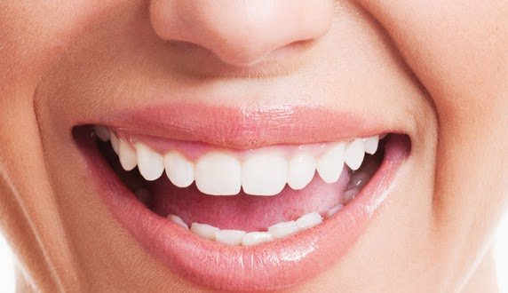 Apakah Ada Cara Yang Bisa Dilakukan Untuk Membuat Gigi Putih Alami