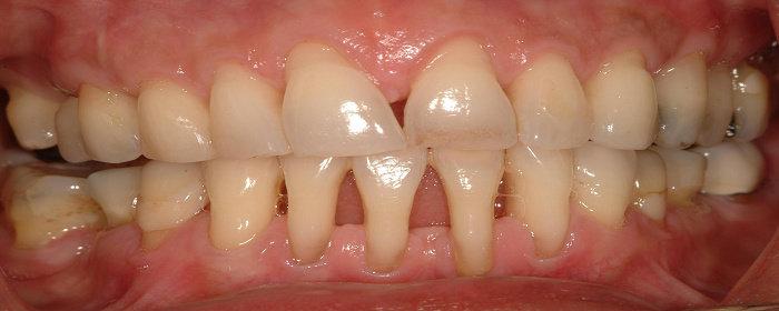 Resesi gingiva