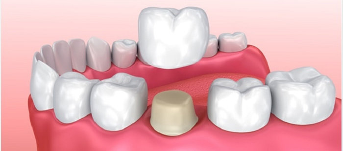 Restorasi gigi