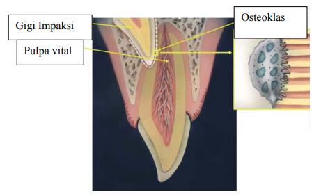 Ilustrasi resorpsi akar akibat dorongan dari gigi impaksi