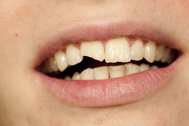 gigi-patah-masih-berguna-jangan-dibuang-alodokter
