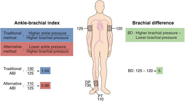 Pengukuran Ankle-Brachial Index