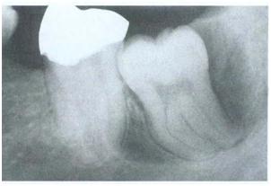 Kista Dentigerous. Tipe sirkumferensial menunjukan kista meluas sepanjang akar mesial dan distal gigi yang tidak erupsi