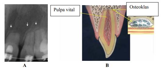 Resorpsi akibat perawatan ortodonti