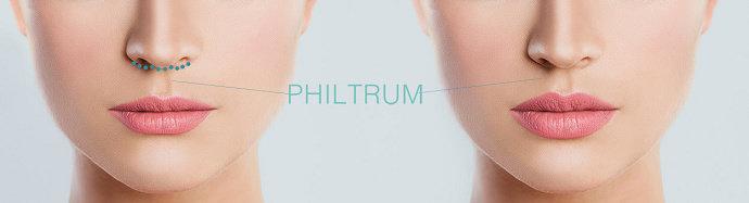 Filtrum (philtrum)