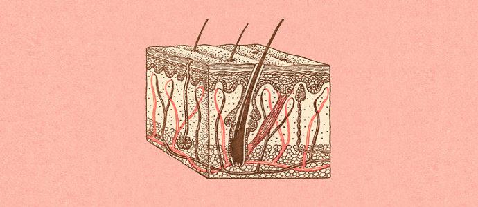 Lesi kulit