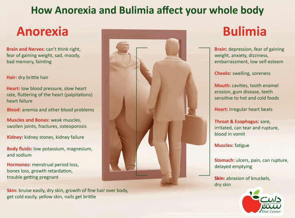 anoreksia dan bulimia