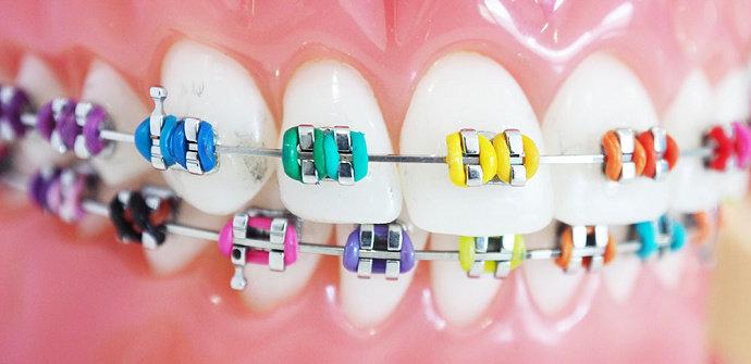 Behel atau kawat gigi