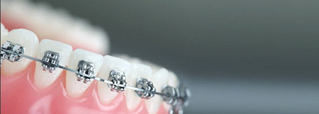 Ortodonsia