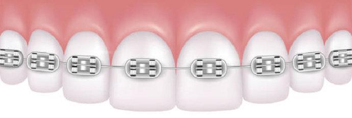 perawatan ortodonti