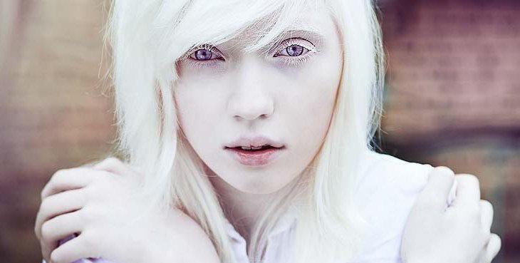 Albinisme Okulokutanea