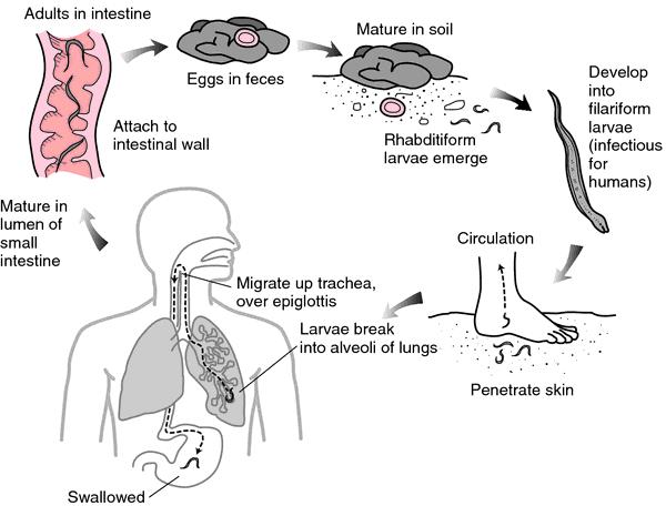 Penyakit cacing tambang