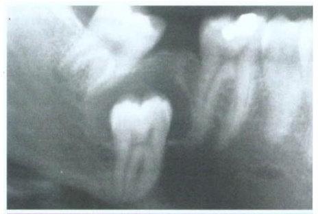 Kista Dentigerous Sentral