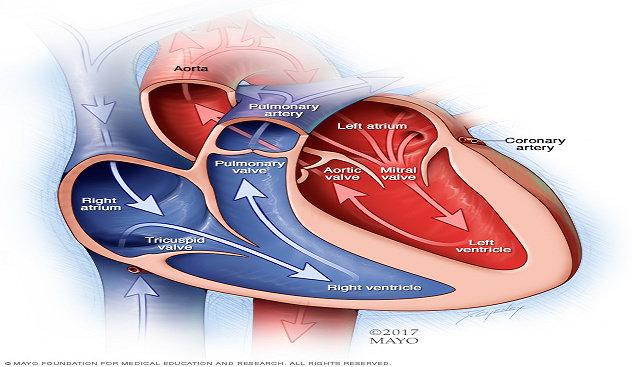Henti Jantung atau Cardiac arrest