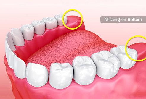 Apa Dampak Yang Ditimbulkan Akibat Membiarkan Gigi Berlubang