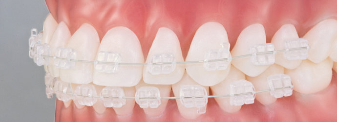 Pesawat ortodonti