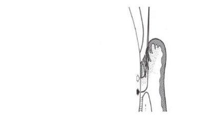 sinovita tratamentului articulației genunchiului drept