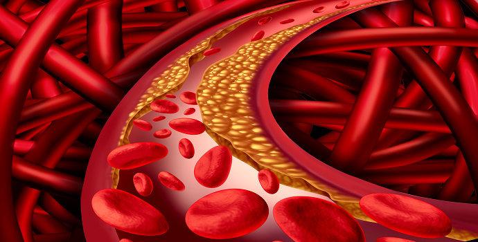 Apa yang dimaksud dengan penyakit jantung koroner? - Ilmu ...
