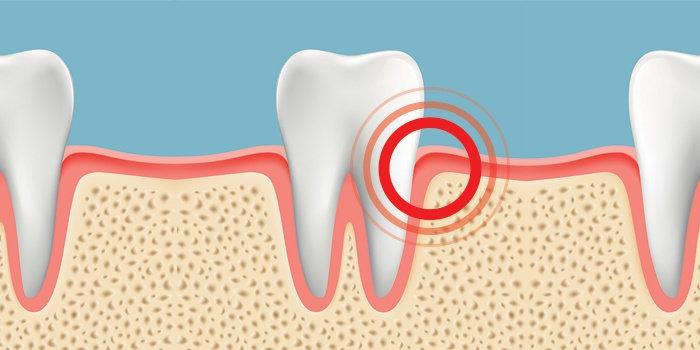 iritasi gigi
