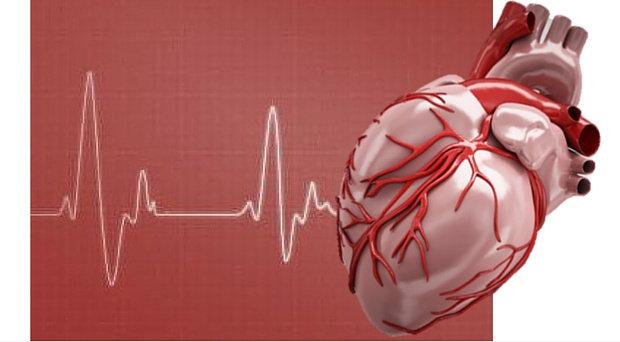 Penyakit kardiovaskuler